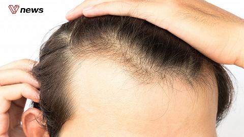 我们为什么还没有办法治脱发?