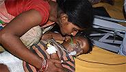 印度东部急性脑炎肆虐致死百余儿童,空腹吃荔枝是主因?