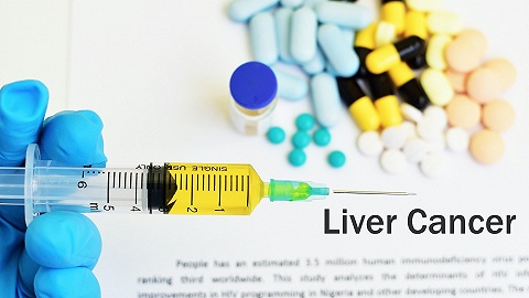罗氏发布T+A方案在肝癌最新数据,联合治疗效果优于单药
